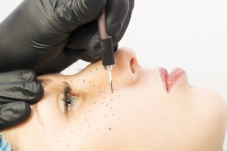 Evolution of Laser Hair Removal Therapy Process